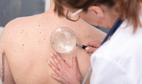 Fotografie, Obraz  Dermatologist examining the skin of a patient