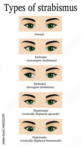 Types of strabismus Tablou Canvas