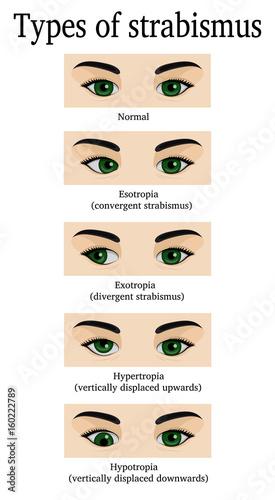 Valokuvatapetti Types of strabismus