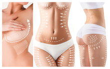 The Cellulite Removal Plan. Wh...