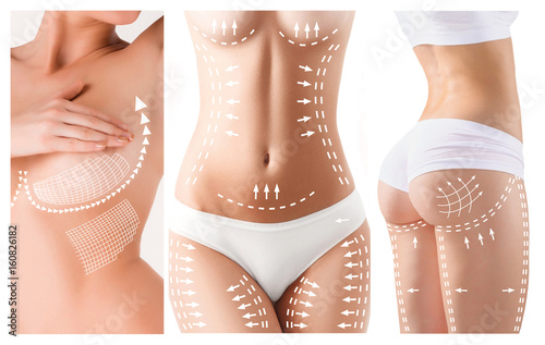 Fotografie, Obraz  The cellulite removal plan. White markings on young woman body