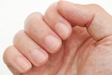 Man Looking At His Finger Nails