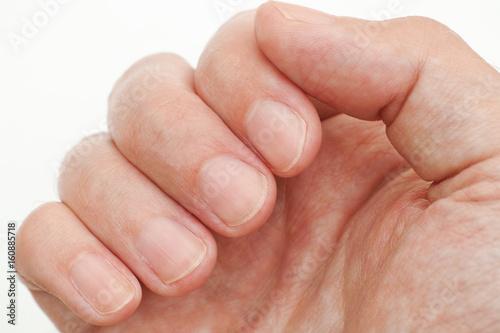 Stampa su Tela Man looking at his finger nails