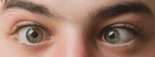 Eyes With Squinted Look