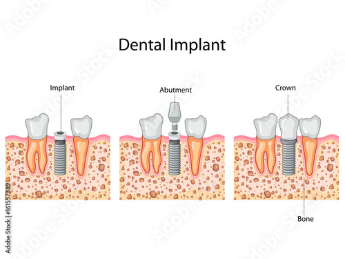 Education Chart of Dental Implant process Diagram Wallpaper Mural