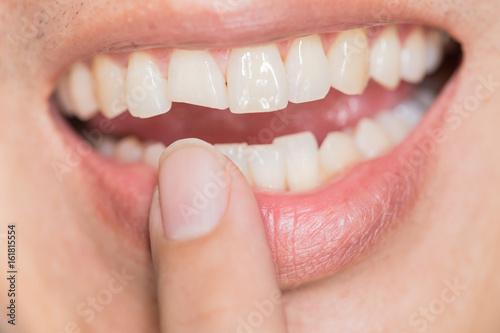 Fotografie, Obraz  ugly smile dental problem