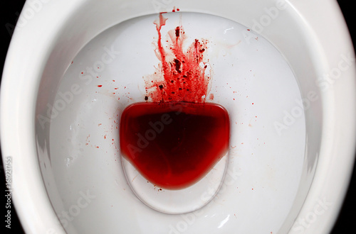 Photo A white ceramic toilet bowl is stained with blood