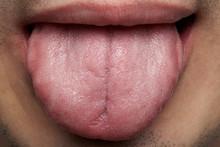 Macro Of Human Tongue