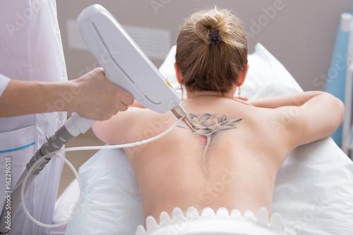 Plakat laserowe usuwanie tatuaży
