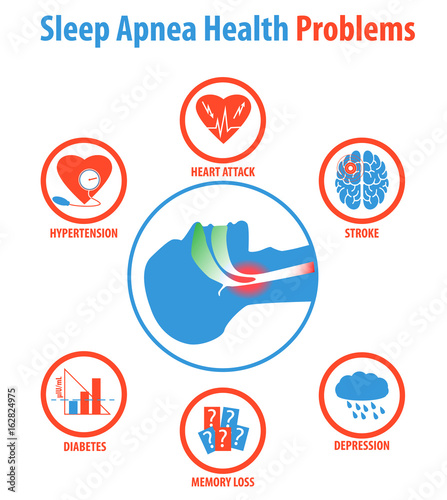 Sleep apnea: treatments, causes, symptoms and health problems. Canvas Print