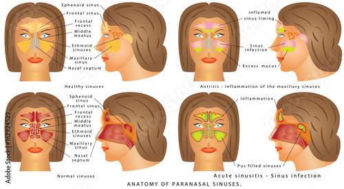 Nasal sinus/ Nasal sinus. Human Anatomy - Sinus Diagram. Anatomy of ...