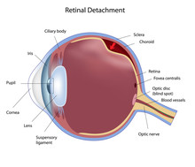 Eye Retinal Detachment