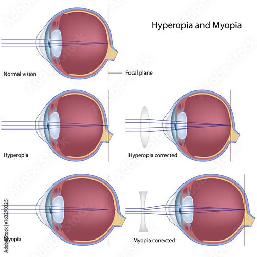Fotografía  Myopia and hyperopia