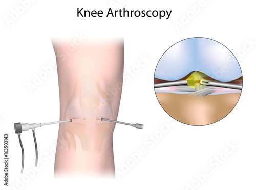 Knee arthroscopy Wallpaper Mural