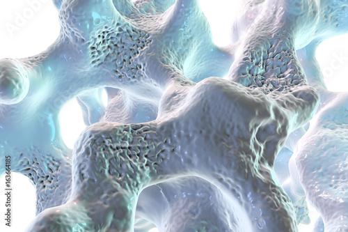 Fotografía  Spongy bone tissue affected by osteoporosis, 3D illustration