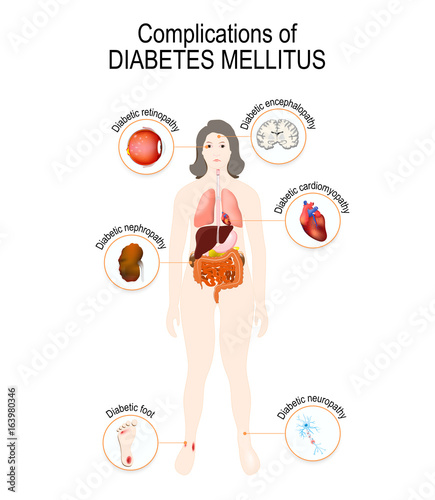 complications of diabetes ## complications of diabetes ★★ preventing diabetes for pre diabetics the 7 step trick that reverses diabetes permanently in as little as 11 days.