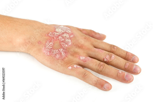 Fotografía  Psoriasis vulgaris on the male hand and finger nails with plaque, rash and patches, isolated on white background