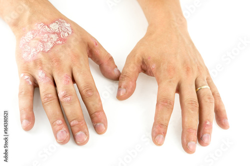 Pinturas sobre lienzo  Psoriasis vulgaris on the mans hands with plaque, rash and patches, isolated on white background