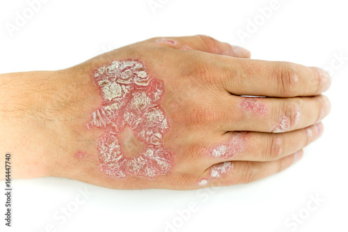 Pinturas sobre lienzo  Psoriasis vulgaris and fungus on the man hand and fingers with plaque, rash and patches, isolated on white background