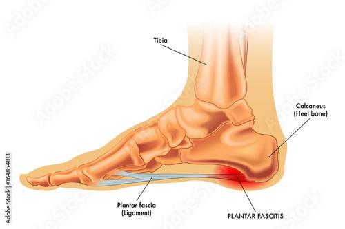 Photo  Vector medical illustration of symptoms of plantar fascitis