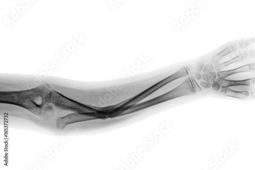 Fototapeta Film x-ray forearm AP show fracture shaft of ulnar bone