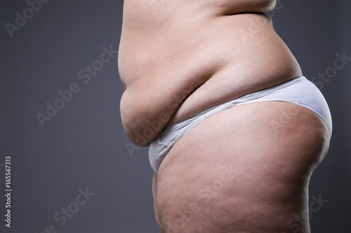 Fotografija  Woman with fat abdomen, overweight female stomach