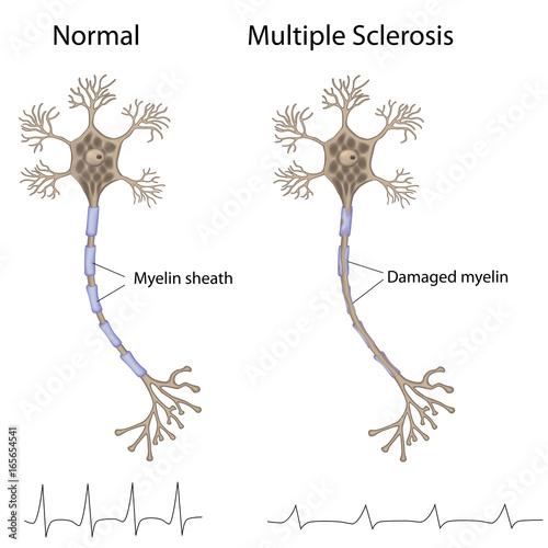 Fotografie, Obraz  Multiple sclerosis
