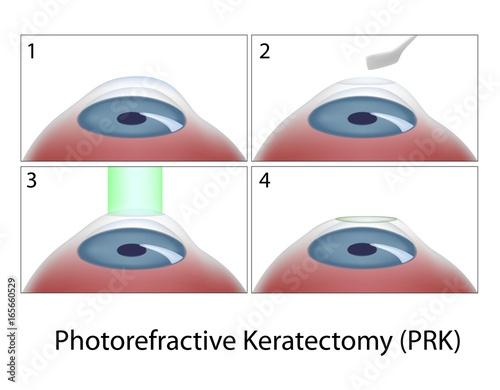 Photorefractive Keratectomy (PRK) surgery Canvas Print