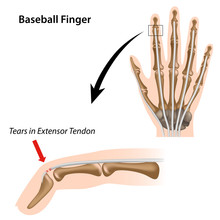 Baseball Finger