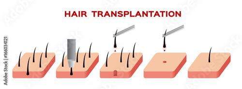 Fotografia, Obraz  hair transplant vector