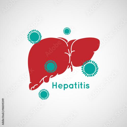 Obraz Vector illustration of Hepatitis - fototapety do salonu