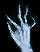 X Ray Of A Hand.