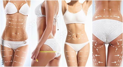 Obraz Collage of a female body with arrows. Fat lose, health, sport, fitness, nutrition, liposuction, healthy life-style concept. - fototapety do salonu