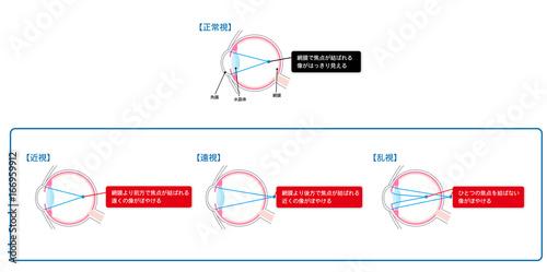 Fotomural  近視・遠視・乱視の図解ベクターイラスト
