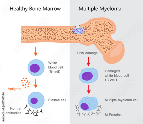 Valokuva  Multiple Myeloma Diagram