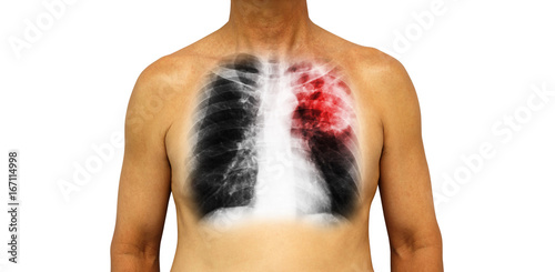 Pulmonary tuberculosis   Human chest with x-ray show patchy