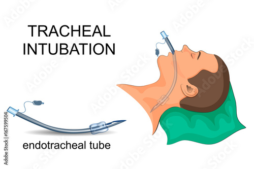 intubation of the trachea. artificial ventilation of the lungs Canvas Print