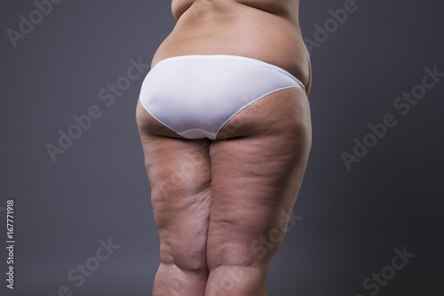 Canvas Print Overweight woman with fat legs and buttocks, obesity female body