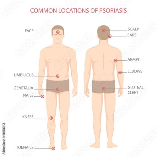 Psoriasis Illness Diagram Human Body Skin Disease Kaufen Sie