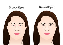 Droopy Eyelid's Surgery