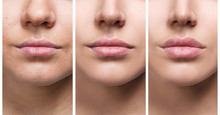 Lips Of Young Woman Before And...