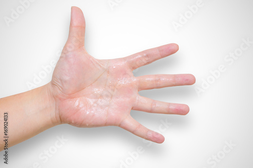 Fotografie, Obraz  Hyperhidrosis wet hand from sweat syndrome