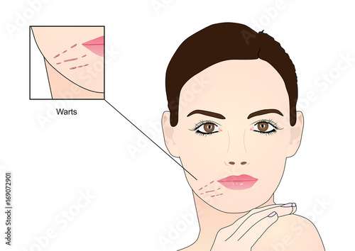 Flat Warts on Face - Buy this stock vector and explore