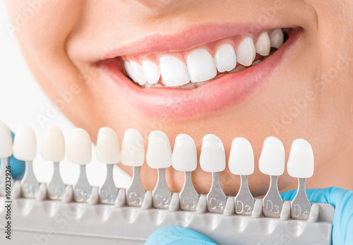 Fototapeta  Beautiful smile and white teeth of a young woman.