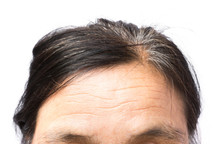 Closeup Wrinkles On Forehead A...