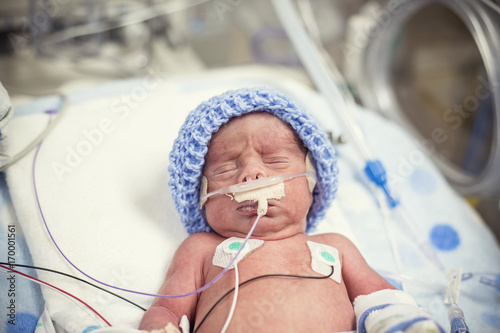 Newborn premature baby in the NICU intensive care – kaufen Sie ...