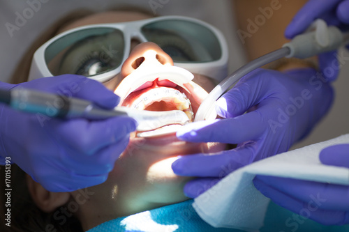 Photo Dental laser used on a patient on soft and hard tissue