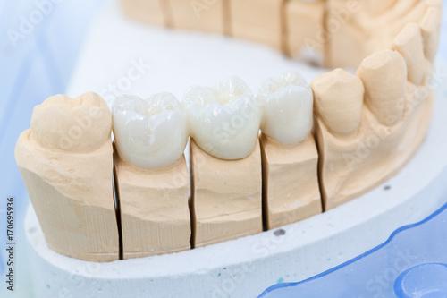 Fotografie, Obraz Detailaufnahme eines Prothesensattels mit Zahnersatz im Zahnlabor