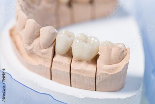Valokuva Detailaufnahme eines Prothesensattels mit Zahnersatz im Zahnlabor
