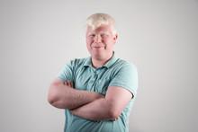 Albino Young Man Portrait. Smi...